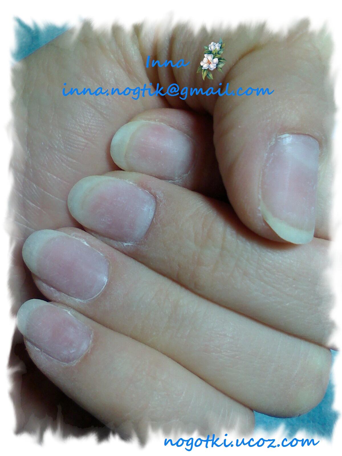 Последствие ногтей после наращивания фото